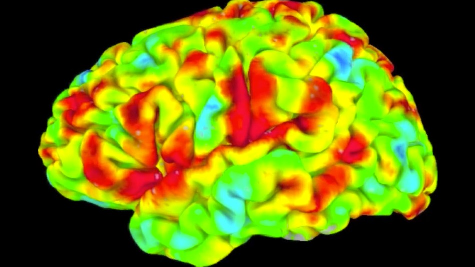 Studying the Brain at Rest Is Really Hard