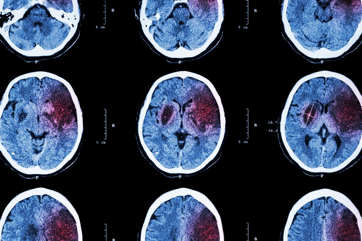 What Happens When an Internet-Connected Brain Has a Stroke?