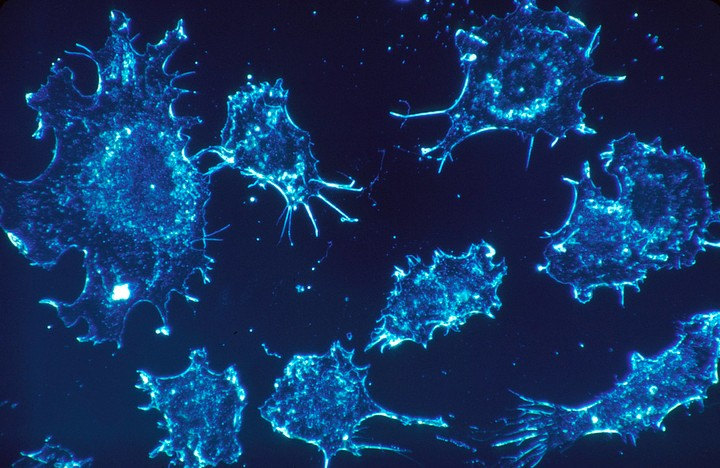 Scientists Are Testing Out Nanoparticles that Can Stop Cancer in Its Tracks