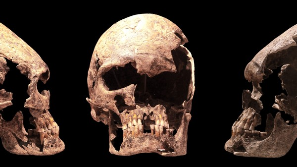Skullture: A History of People Reshaping Their Heads