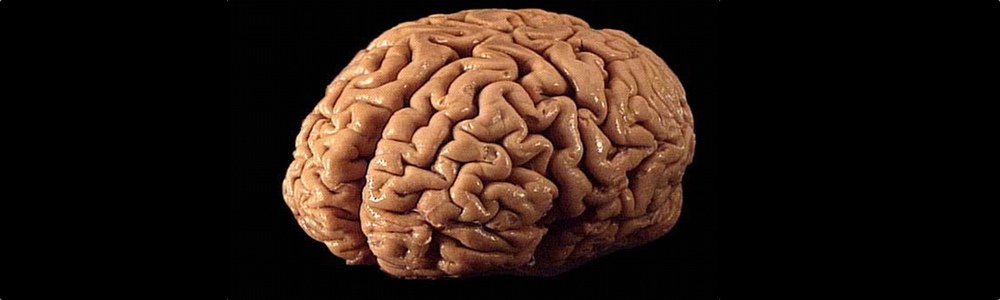 The Brain Market: How to Acquire Brains Both Legally and Illegally ...