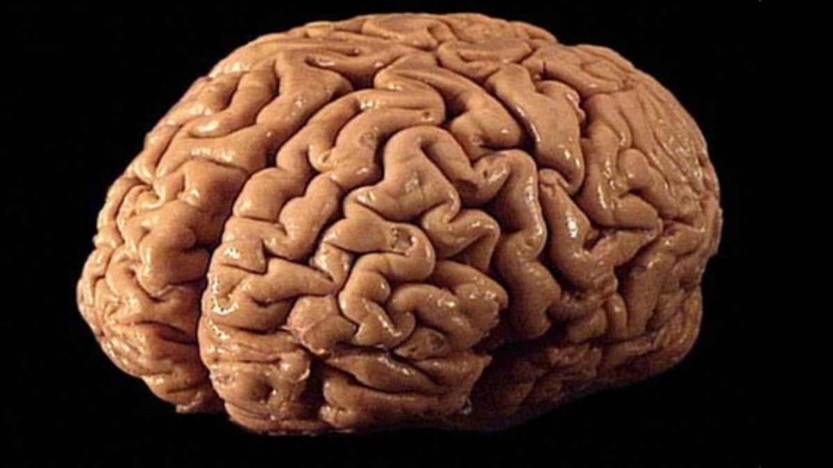 The Brain Market How To Acquire Brains Both Legally And Illegally