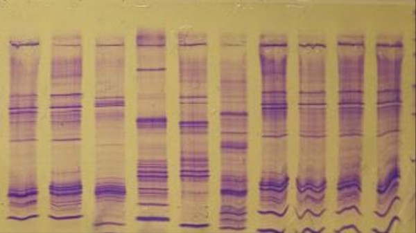 Why Criminal DNA Records Should Be Public