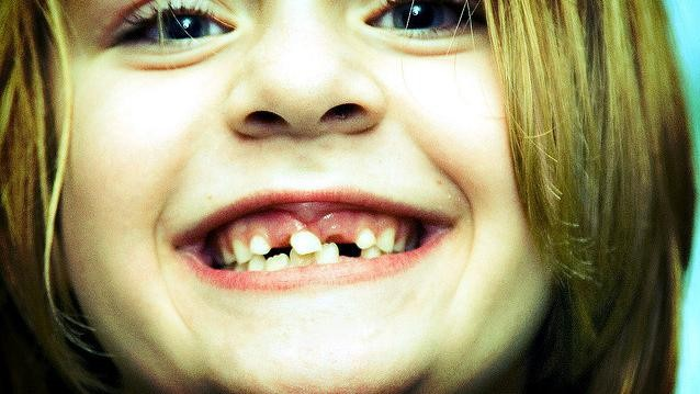 Back Off, Tooth Fairy, Those Baby Teeth May One Day Save a Life