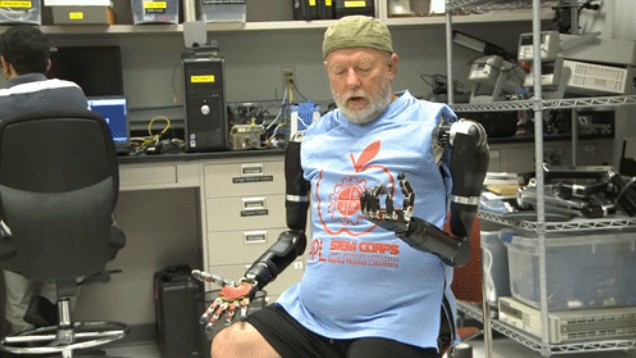 Amputee Gets Two Mind-Controlled Robotic Arms